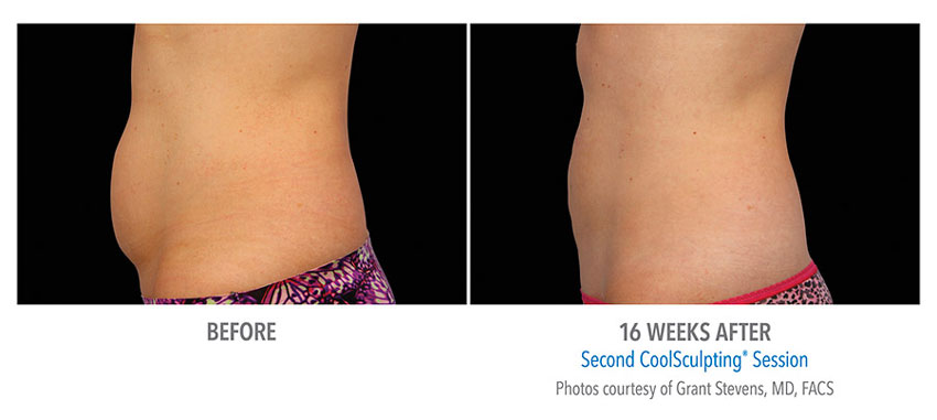 photo showing actual before and after CoolSculpting results for female abdomen