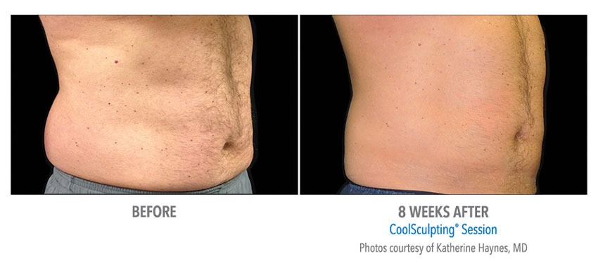 photo showing actual before and after CoolSculpting results for male abdomen