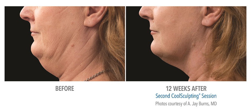photo showing actual before and after CoolSculpting results for female chin
