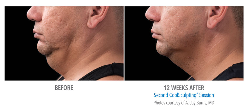 photo showing actual before and after CoolSculpting results for male chin