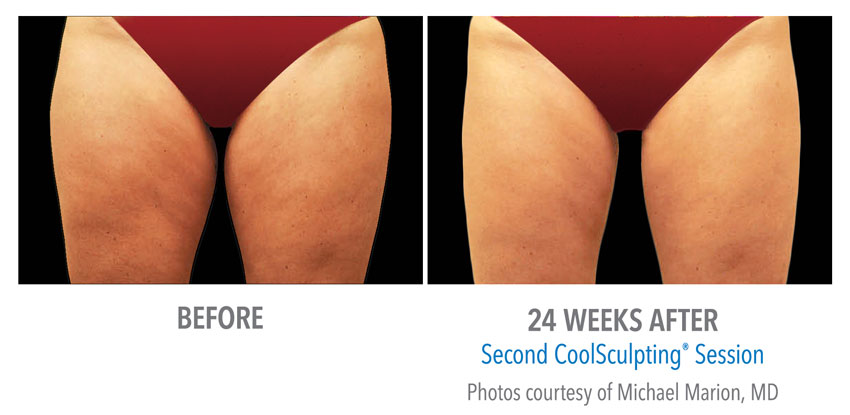 photo showing actual before and after CoolSculpting results for legs and thys