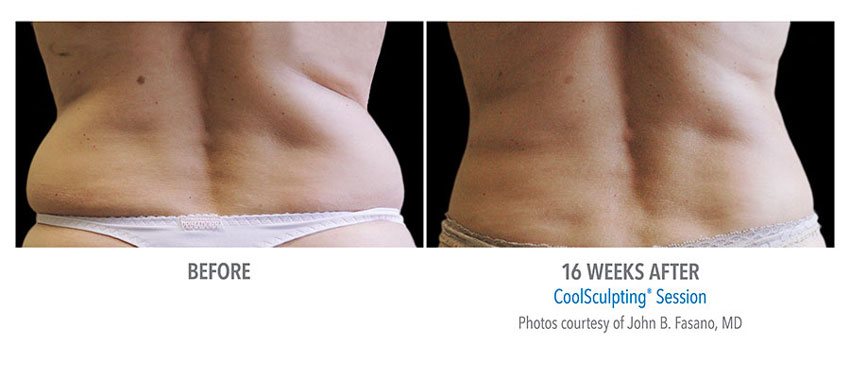 photo showing actual before and after CoolSculpting results for female waist