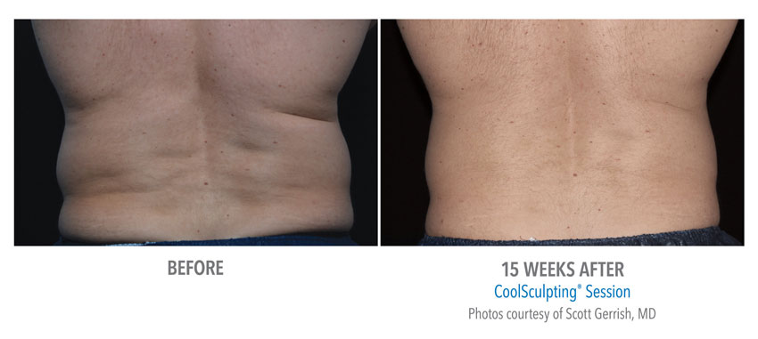 photo showing actual before and after CoolSculpting results for male waist